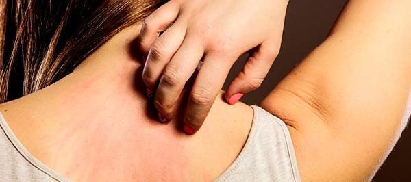 Sinais de câncer de pele que você não deve ignorar